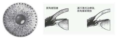 急性青光眼手术治疗