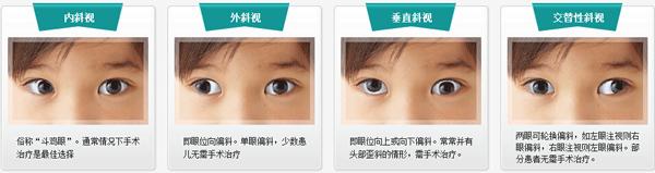 四种斜视类型
