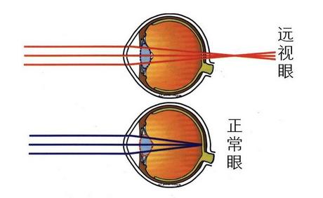 正常眼和远视眼的区别