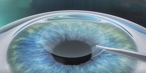 全飞秒激光近视手术