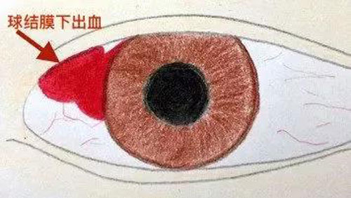 眼底出血是怎么引起的
