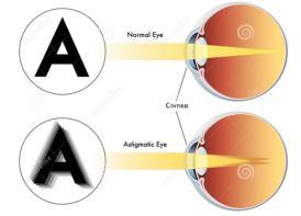 眼睛散光怎么治疗