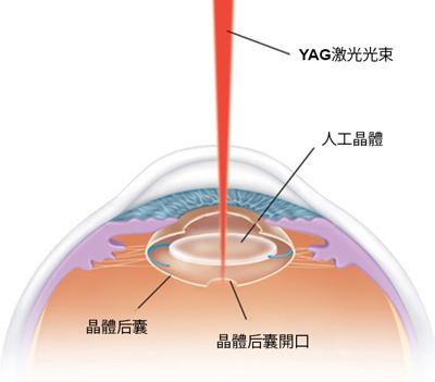 昆明YAG激光治疗白内障