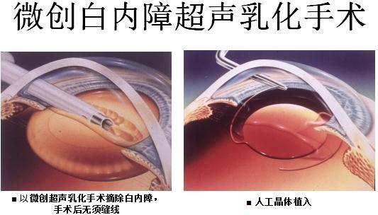 白内障超声乳化手术