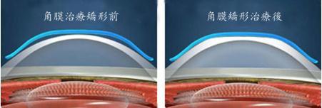 角膜塑形镜的优点