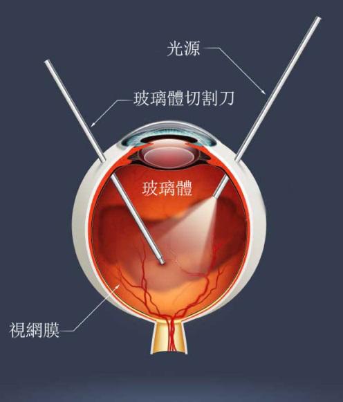视网膜脱落