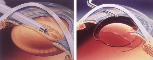近视和白内障