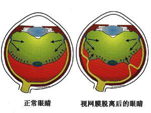 视网膜脱落症状