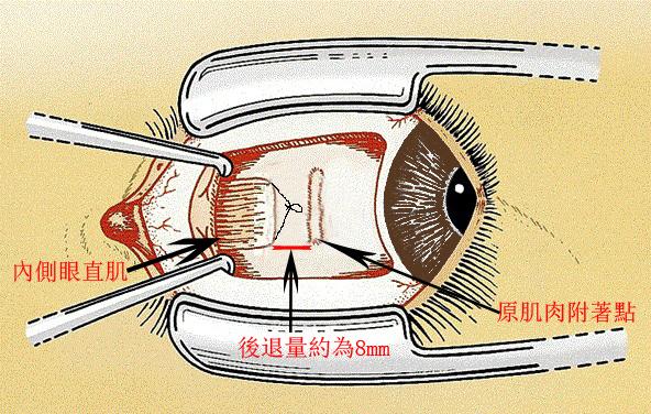 斜视治疗方法