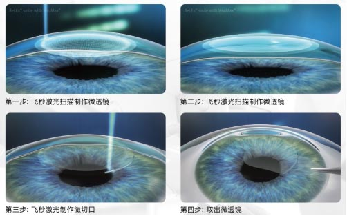 角膜厚度多少可以做近视手术
