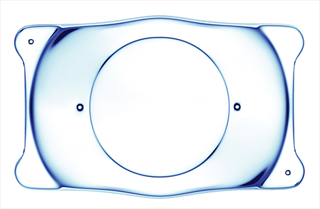 晶体植入术和近视激光手术哪个更好
