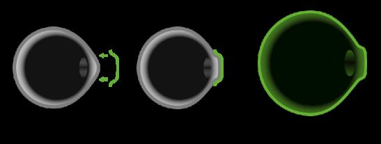 角膜塑形镜适合多少度近视