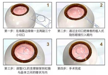 晶体植入术的人工晶体能用多久?