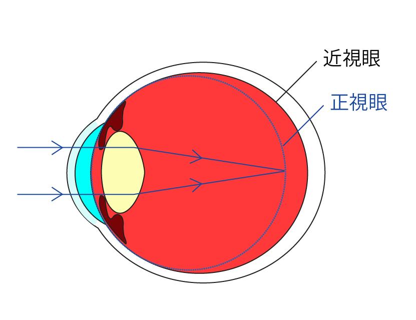 近视手术会视力反弹吗?