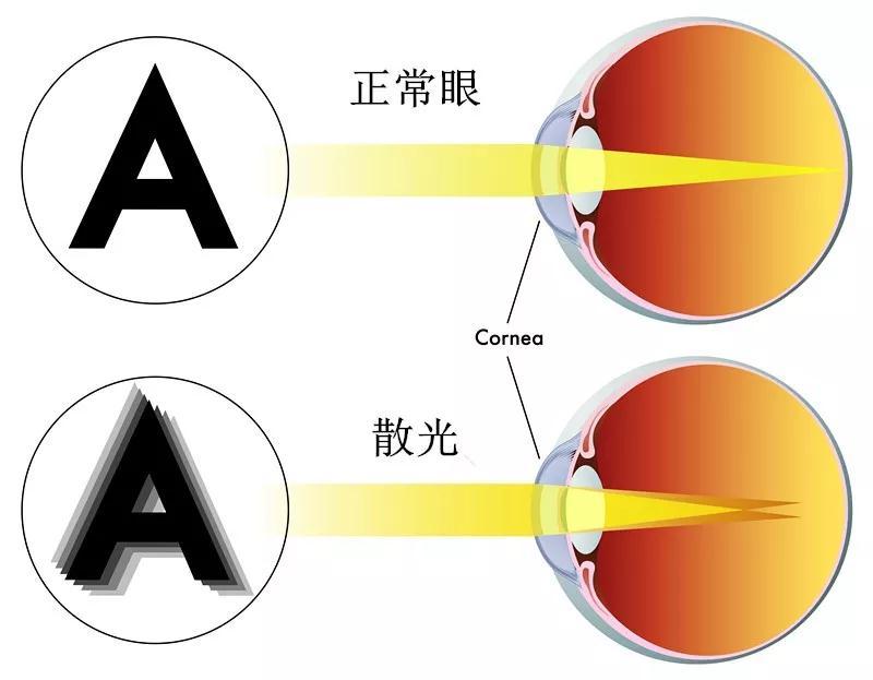 散光能够做近视手术吗?